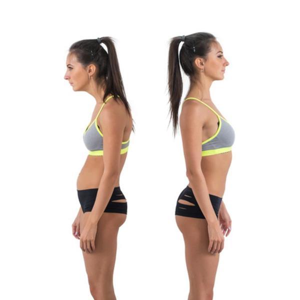 「反り腰猫背」と「垂れ尻猫背」の違い、その治し方